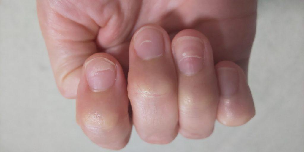 手の指の爪